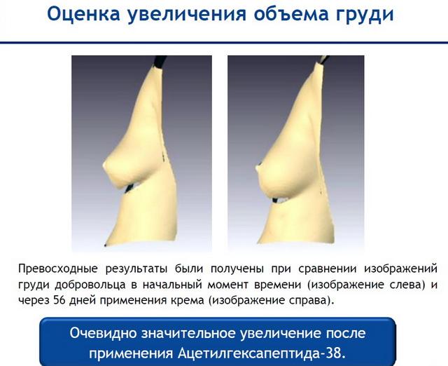 Действие Adifyline  - оценка увеличения объема груди