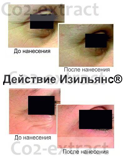 Эффект Изильянс вокруг глаз