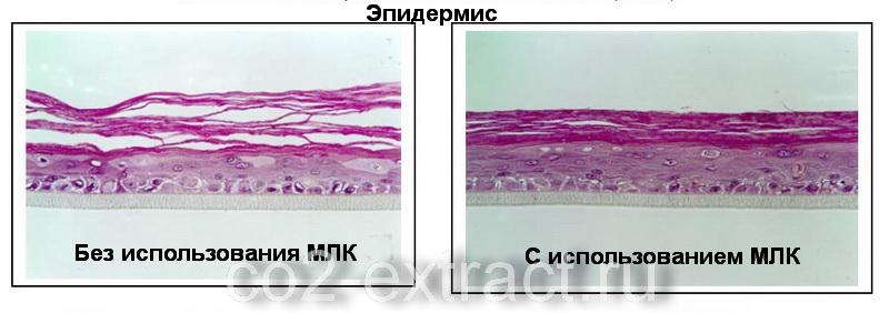 Действие мембранно-липидного комплекса