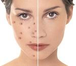 Сверхкритический CO2 экстракт купаж для проблемной кожи (терпеноиды не менее 10%, флавоноиды не менее 3%)